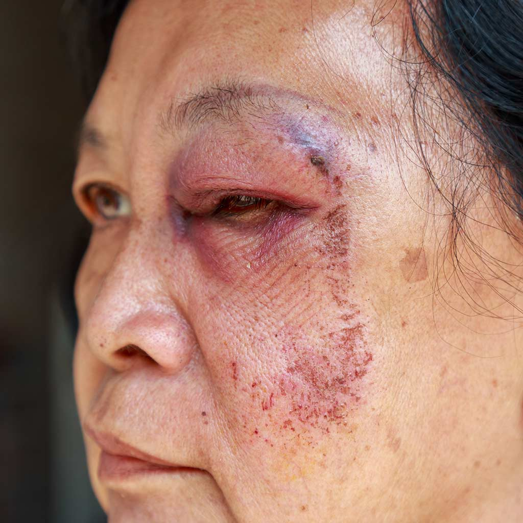 SI Elder Lawyer Physical Abuse in Nursing Home Header